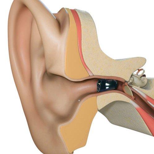 Kleinste in het oor hoortoestellen